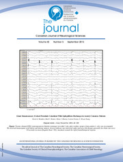 Canadian Journal of Neurological Sciences Volume 42 - Issue 5 -