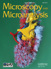 Microscopy and Microanalysis Volume 20 - Issue 2 -