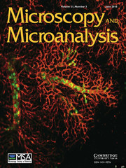 Microscopy and Microanalysis Volume 21 - Issue 3 -