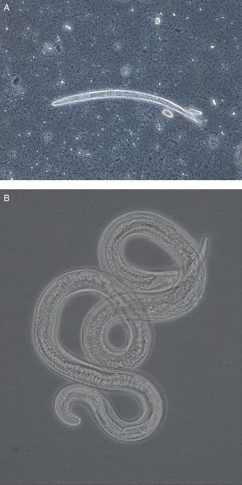 strongyloides westeri