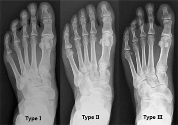 Navicular Synchondrosis : Accessory navicular bone was identified in 34 cases (20%) of the 170 exams.