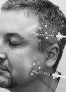 Botulinum Toxin Therapy (Section II) - Treatment of Dystonia