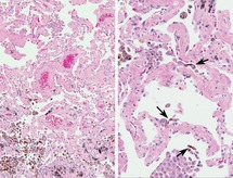 Pigment-laden macrophages in the lung (Chapter 8) - Non
