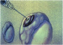 Male infertility (Chapter 58) - Clinical Gynecology