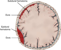 Evacuation of acute epidural and subdural hematomas (Chapter