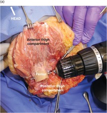 Lower extremity amputations (Chapter 37) - Atlas of Surgical