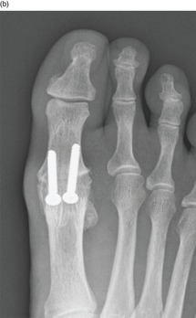 Midfoot and Forefoot Arthritis (Chapter 7) - Core Topics in