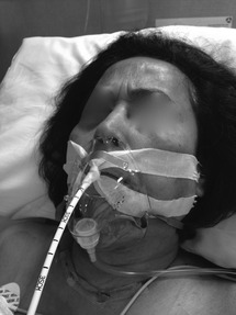 When the Airway Goes Bad (Section 7) - Clinical Airway