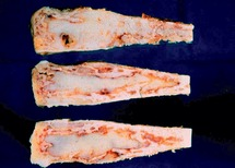 Bone and joint lesions (Chapter 12) - Essentials of Surgical