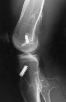 Fracture Fixation (Chapter 3) - Radiologic Guide to