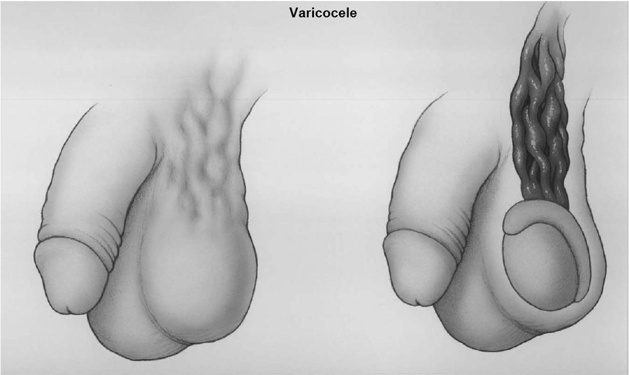 Varicocele (Chapter 8) - Fertility Preservation in Male Cancer ...