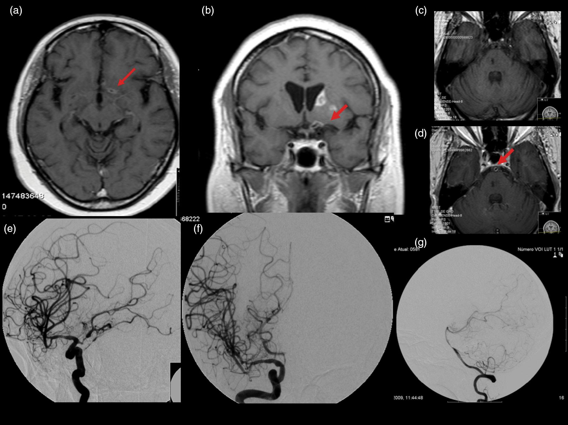 vasculitis cerebral imagenes