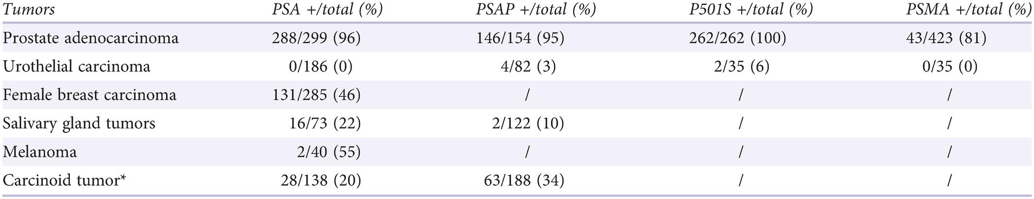 Adenocarcinoma de próstata de Gleason 10 13 13a 360t 516 512