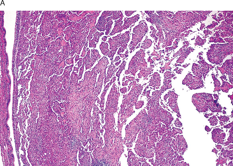 adenoma central de próstata 18 7 mla