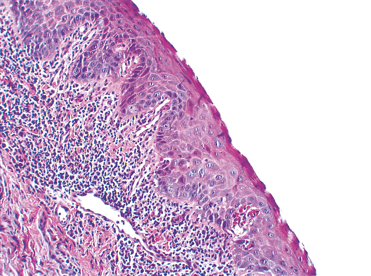ameloblastoma acantomatoso diabetes canina