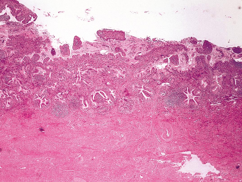 Cervicitis lapos condylomával. Condyloma fertőzés — Dr. Fekete István
