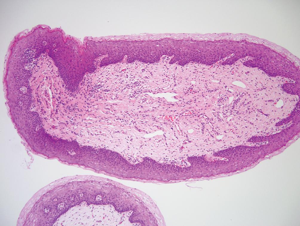 vestibular papillomatosis histology)