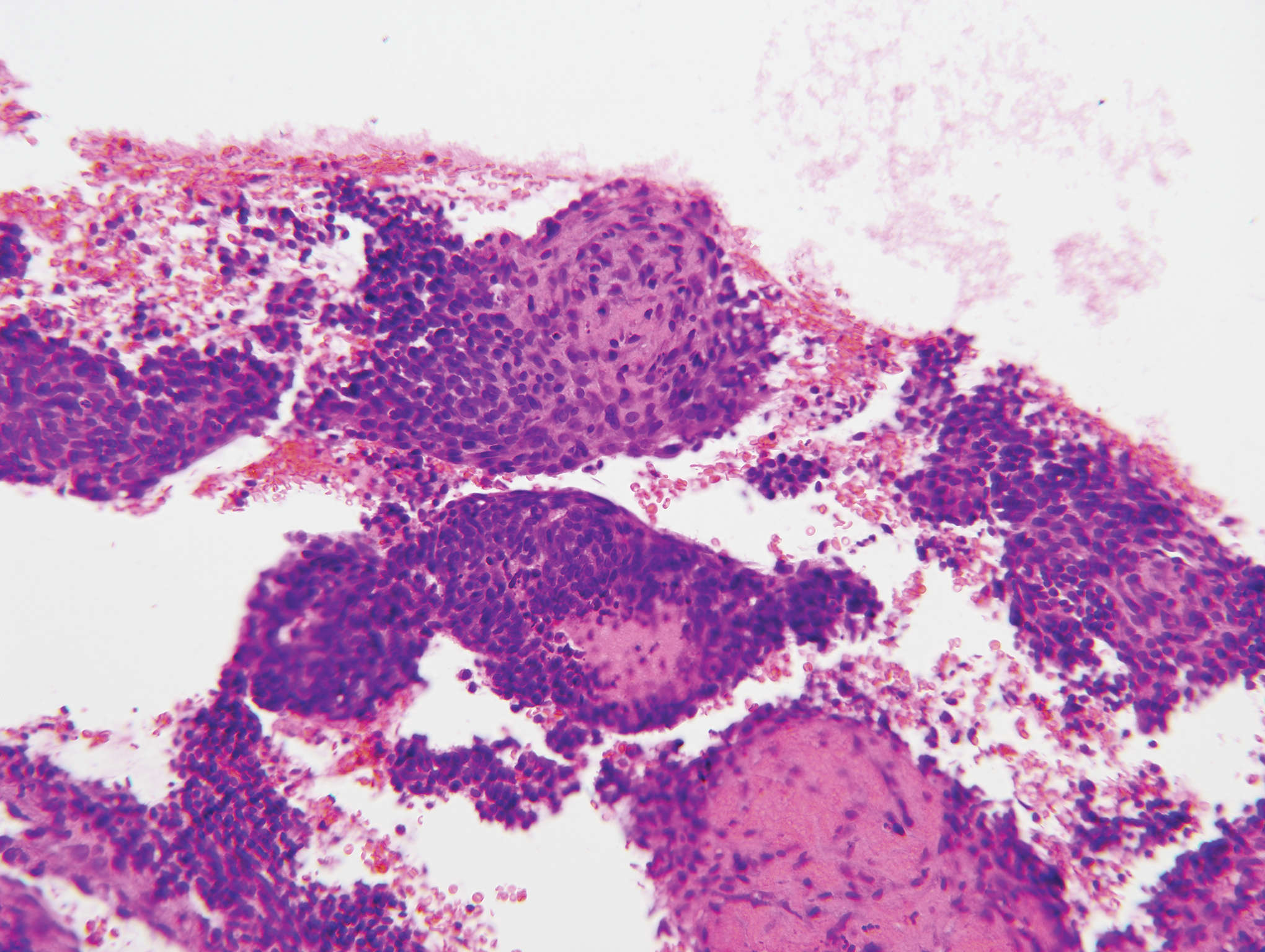 Histologia endometriumin dating