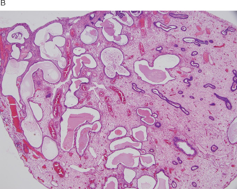 Breakdown pathology stromal Diagnosis of