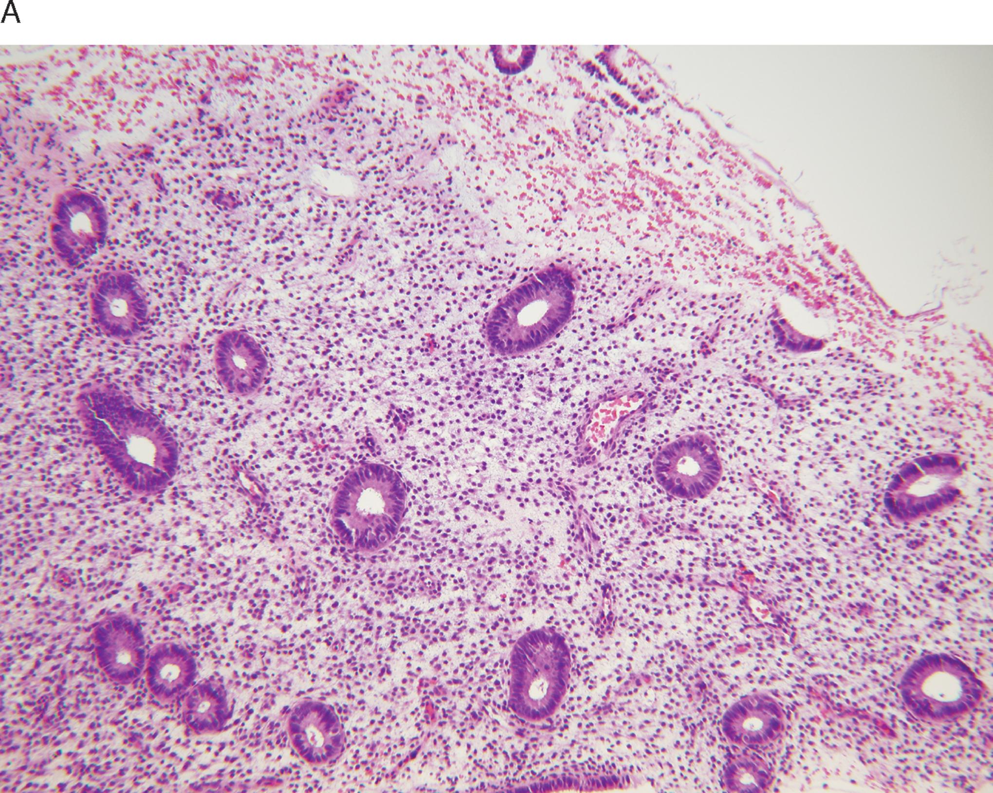 Endometrium biopsy result proliferative Endometrial Biopsy