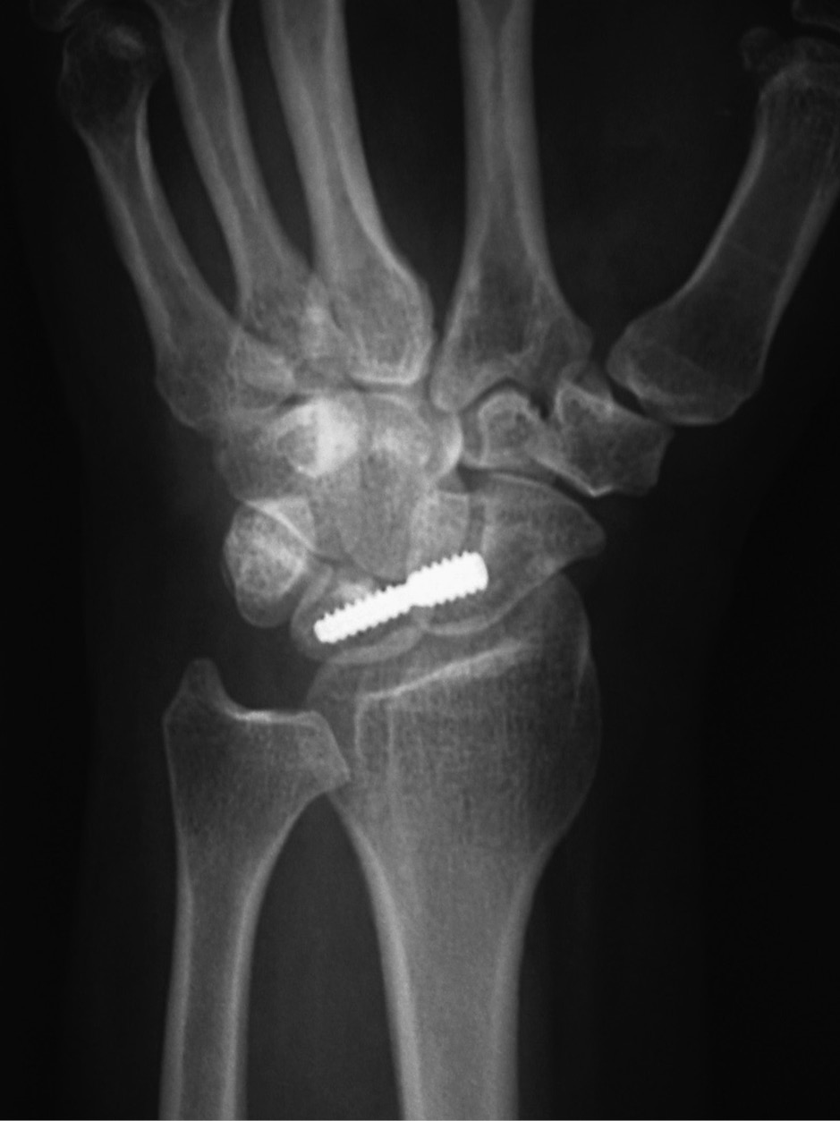 Joint Arthroplasty (Chapter 4) - Radiologic Guide to