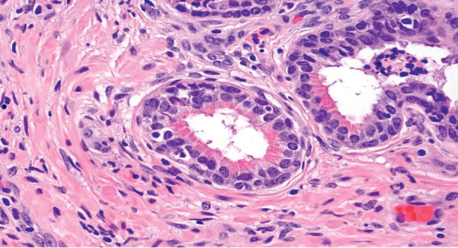 prostate central zone histology