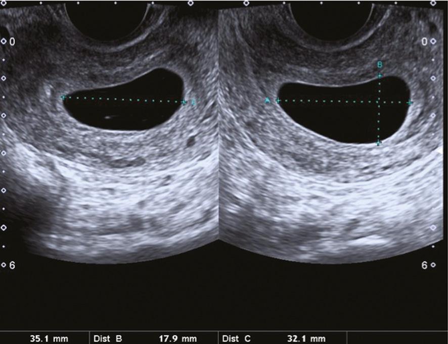 Pregnancy Ultrasound for SRH Work (Chapter 7) - Ultrasound