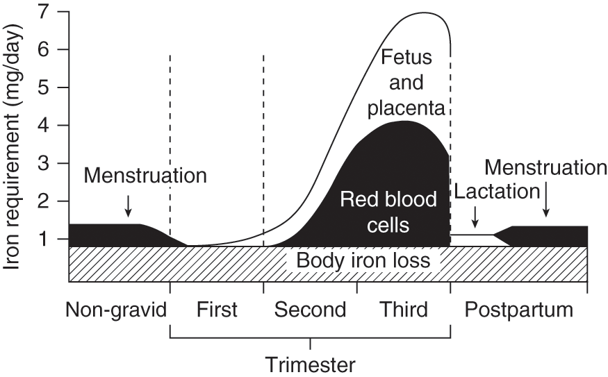 Iron Deficiency in Pregnancy (Chapter 3) - The Obstetric