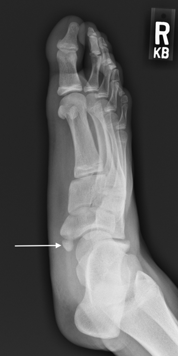 The Pediatric Foot Chapter 20 Core Topics In Foot And Ankle Surgery The accessory navicular, which is considered an anatomic variant, may be the source of pain in surgical treatment consists of excision of the accessory navicular with its synchondrosis, without. the pediatric foot chapter 20 core