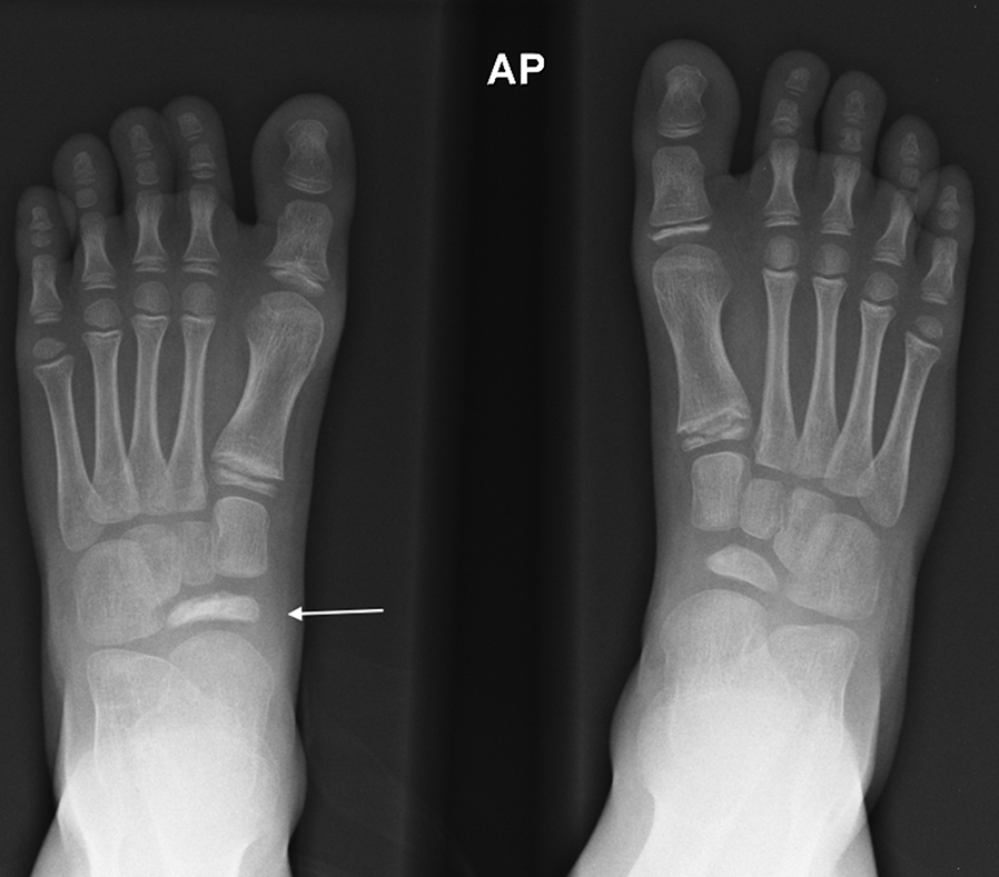 The Pediatric Foot (Chapter 20) - Core Topics in Foot and