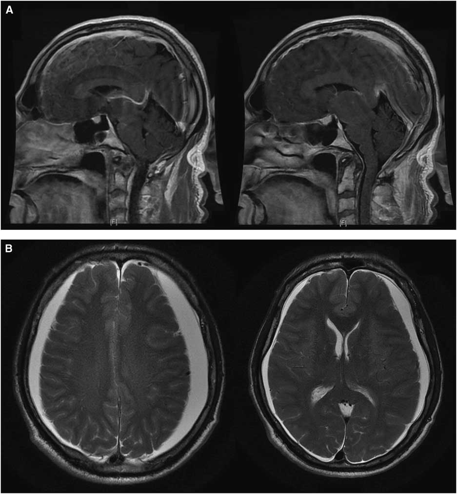 Spontaneous Intracranial Hypotension As A Cause Of Exacerbation In Huntington S Disease