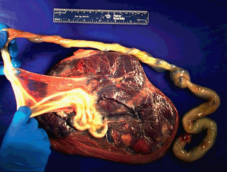 Other Pathologic Processes (Section 6) - Placental and