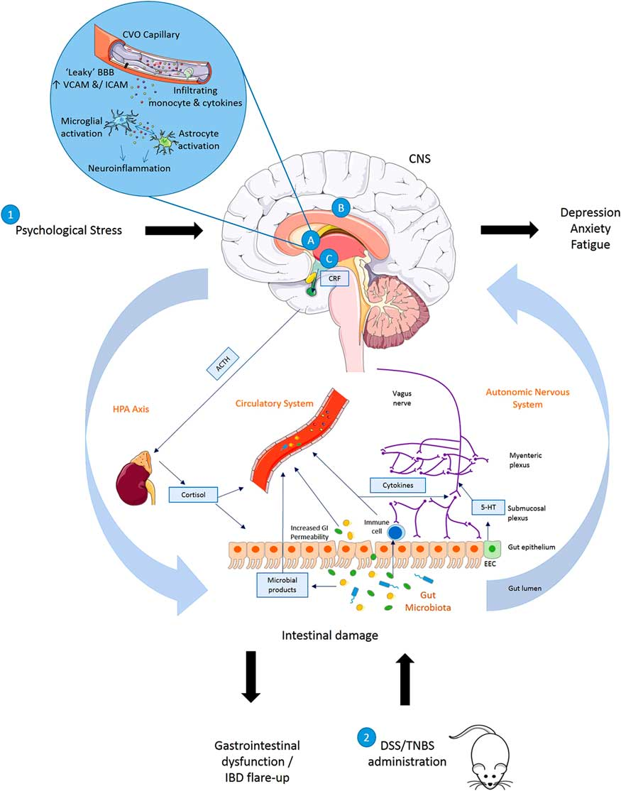 Gut–brain actions underlying comorbid anxiety and depression