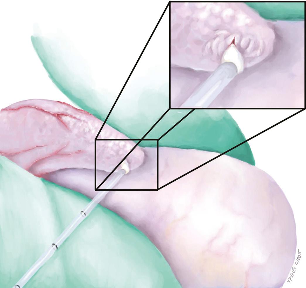 Surgical Sperm Retrieval Methods (Chapter 14) - Reproductive