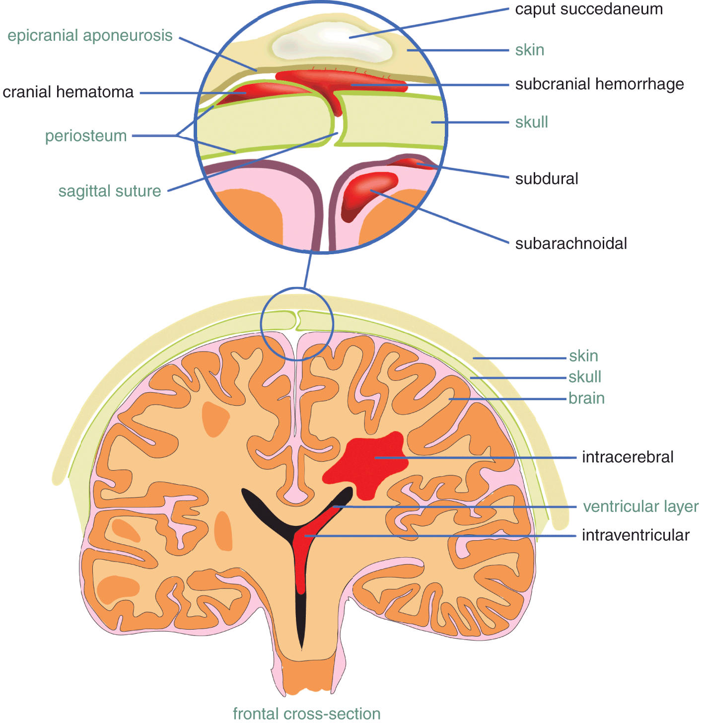 Operative Vaginal Delivery Vacuum And Forceps Extraction Chapter 7 Obstetric Interventions