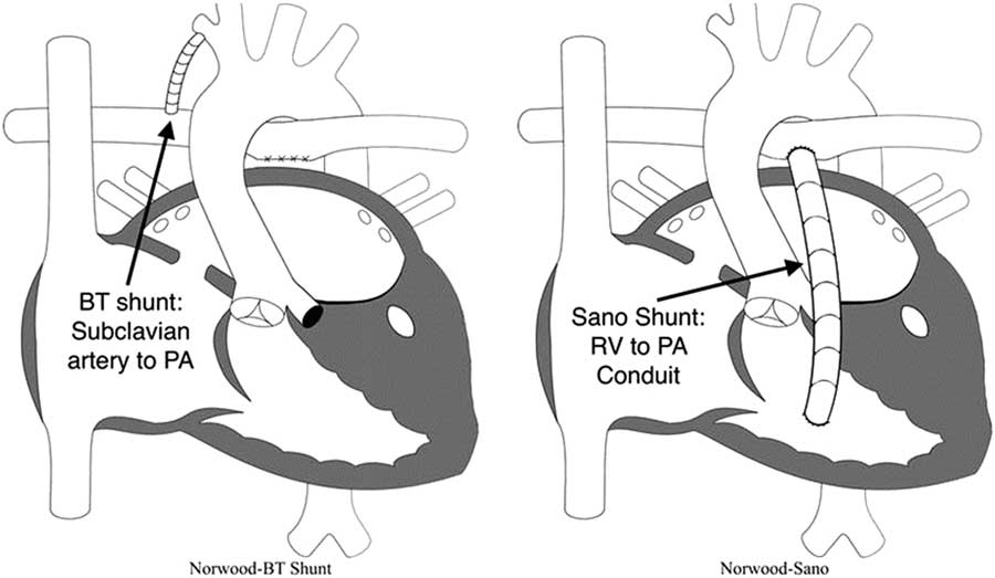 Hypoplastic Left Heart Syndrome From Fetus To Fontan