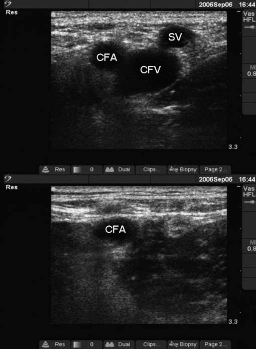 Ultrasound (Part II) - Clinical Emergency Radiology
