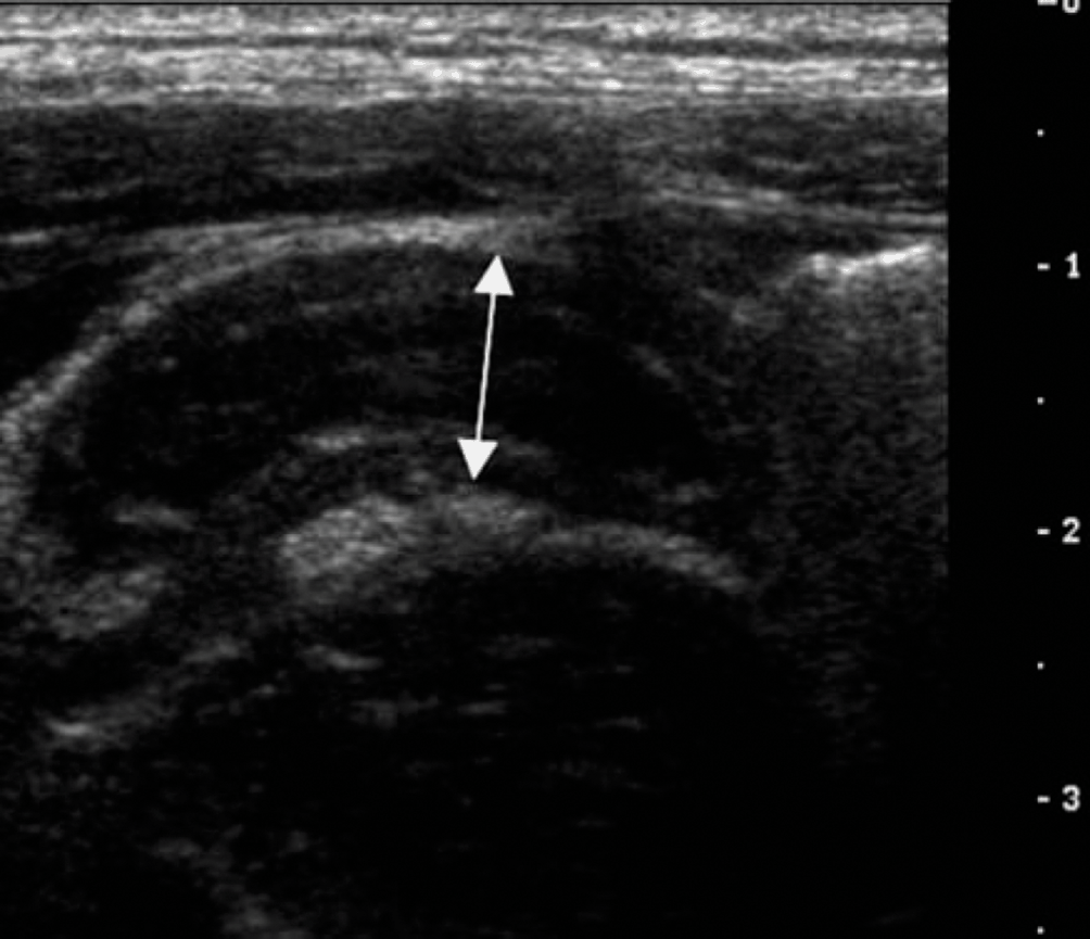 Abdominal Ultrasound (Chapter 24) - Clinical Emergency Radiology