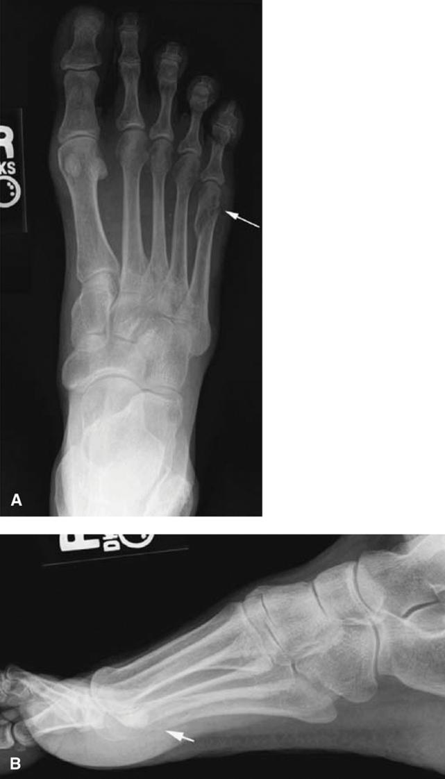 Plain Radiography (Part I) - Clinical Emergency Radiology