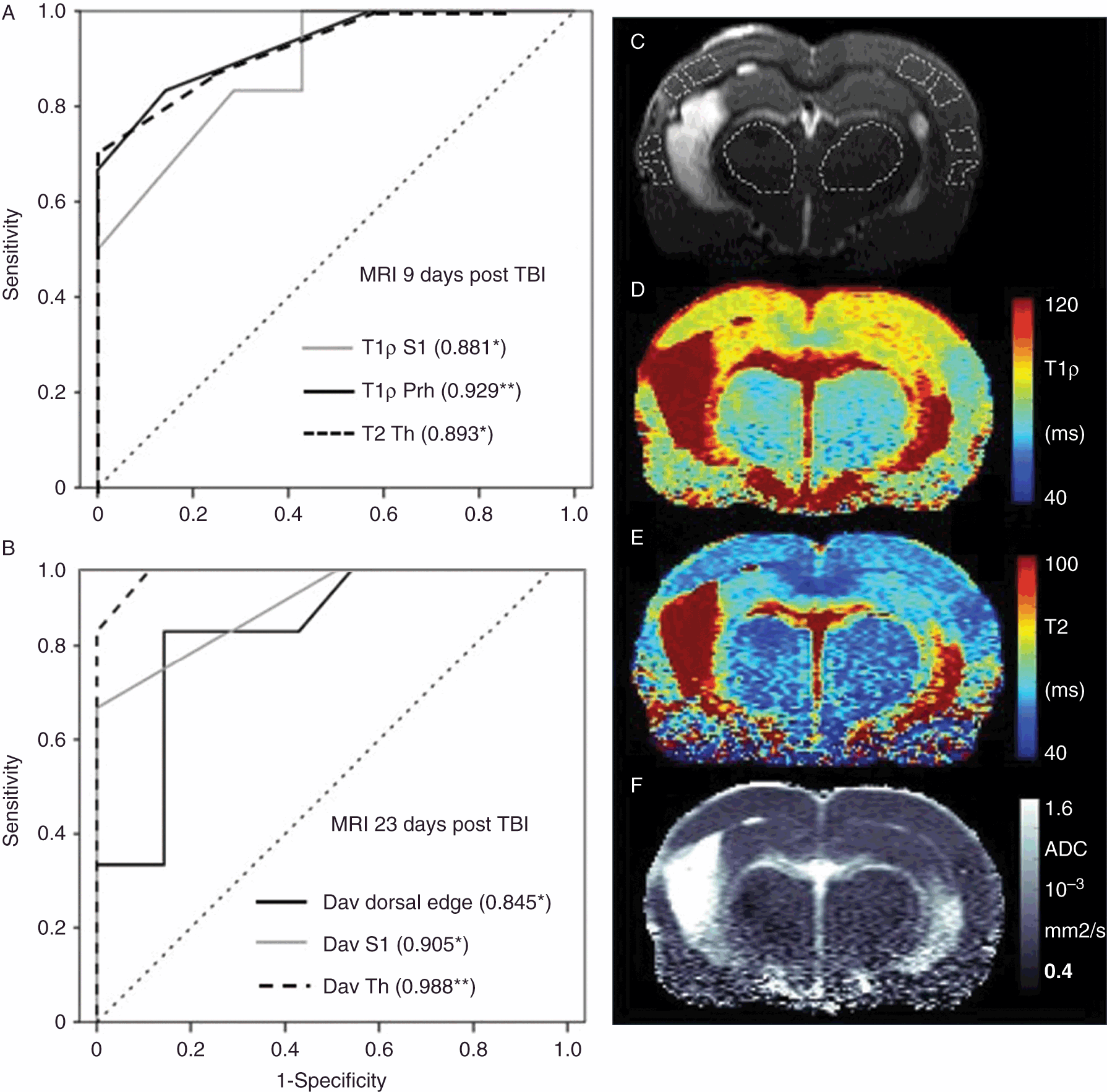 Experimental MRI Approaches to Study Posttraumatic Epilepsy