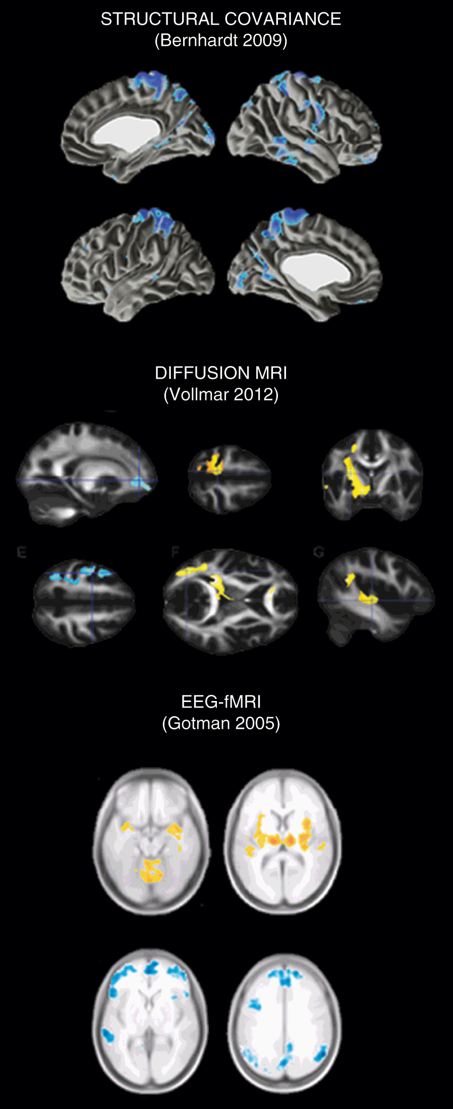Modeling Epileptogenic Lesions and Mapping Networks (Part II