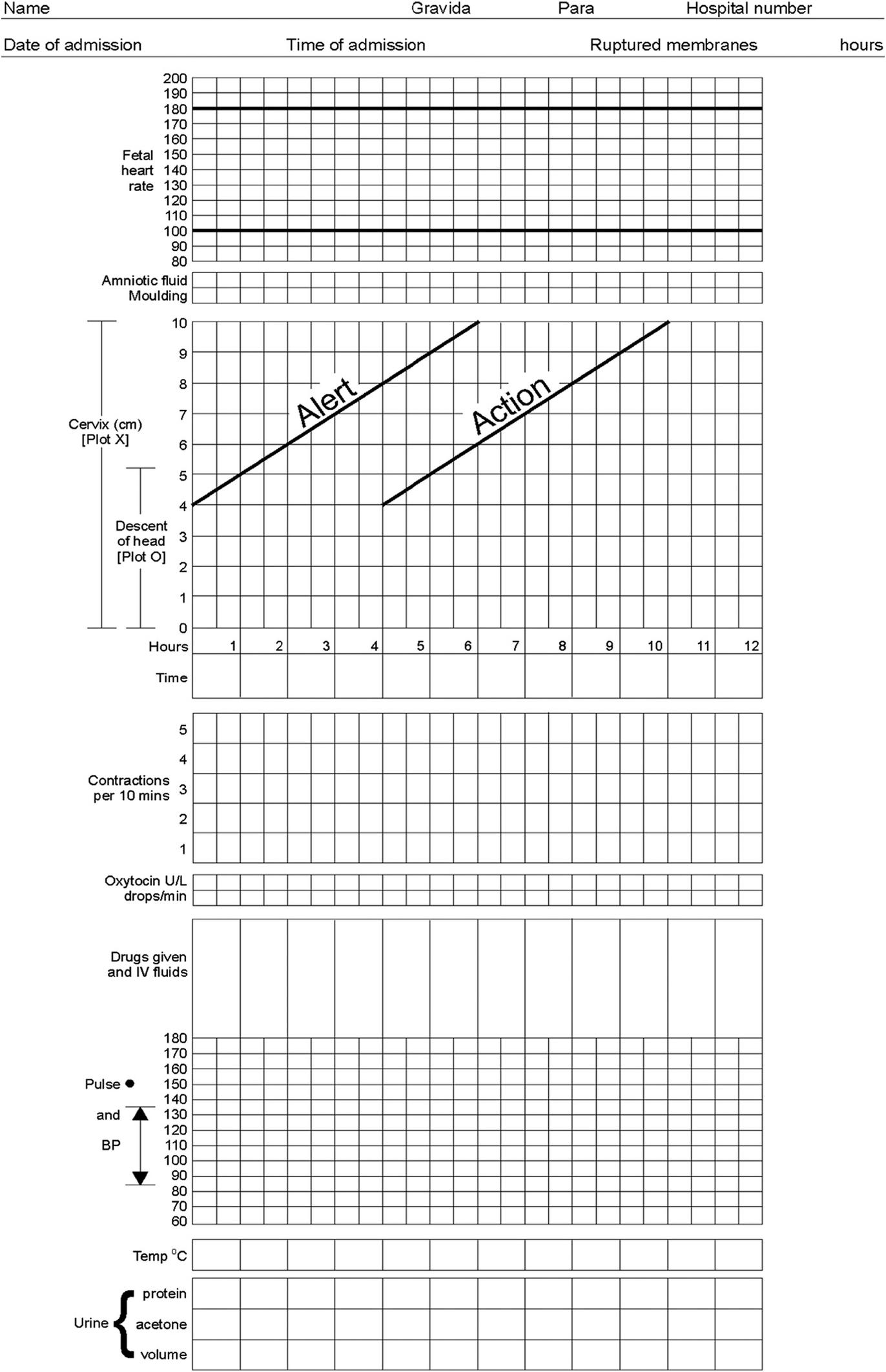 stroganoff bináris opciók élő diagram