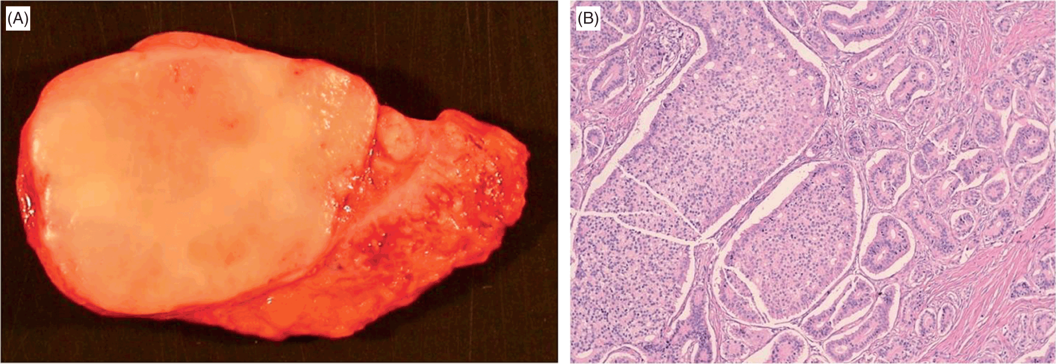 Neuroendocrine Tumors (Section 5) - Gynecologic and Urologic