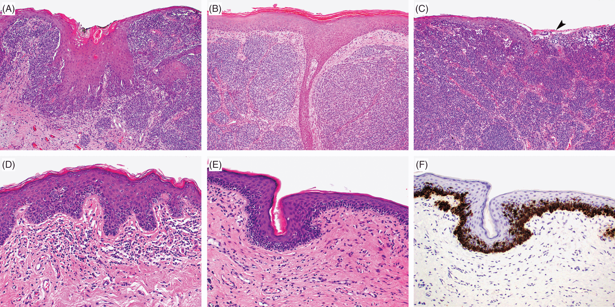 ♂♀ Malignant Neoplasms of the Vulva and Penis (Chapter 33