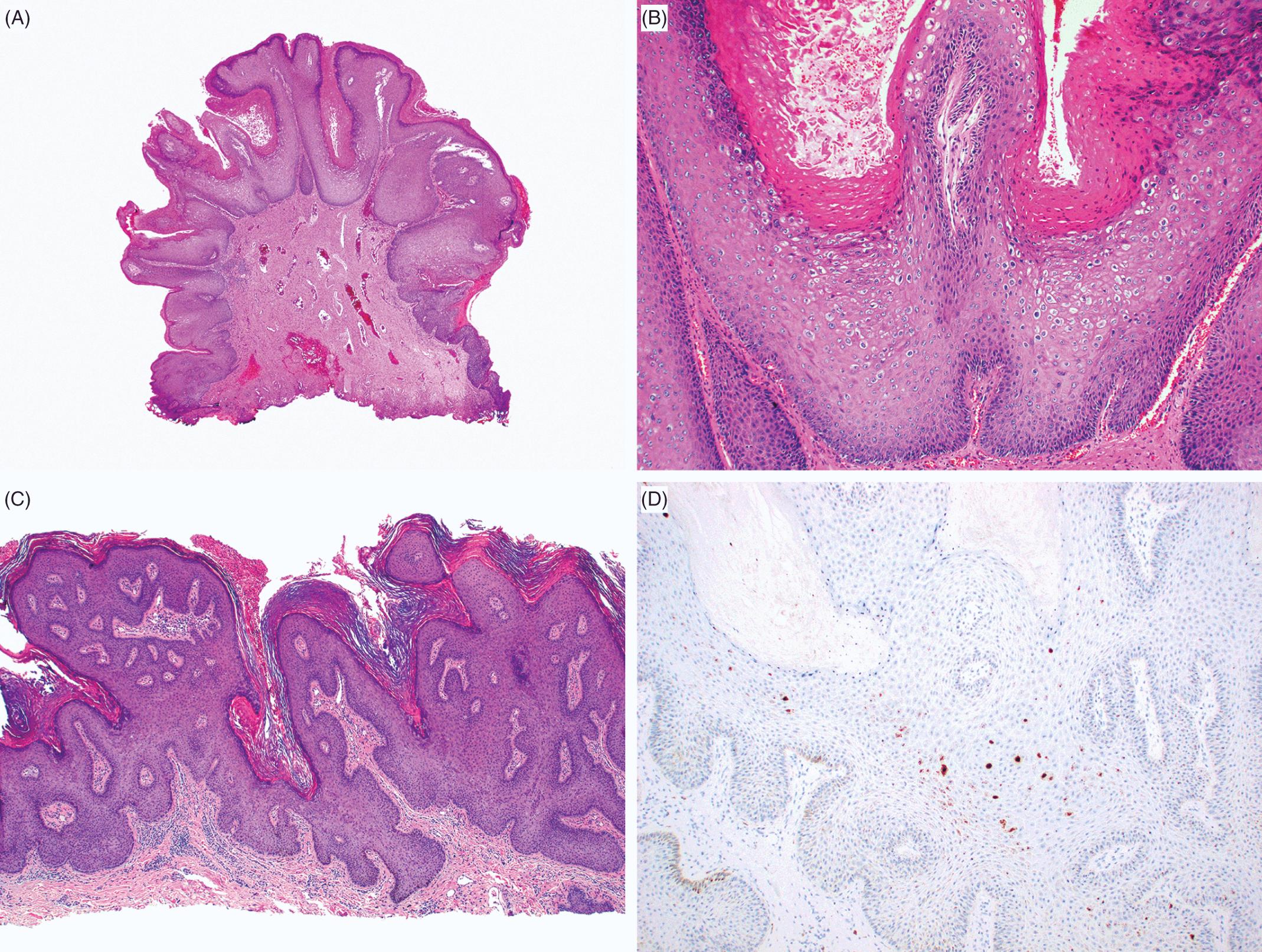 Hyperkeratosis bőr papilloma, Dr. Diag - Verrucca vulgaris