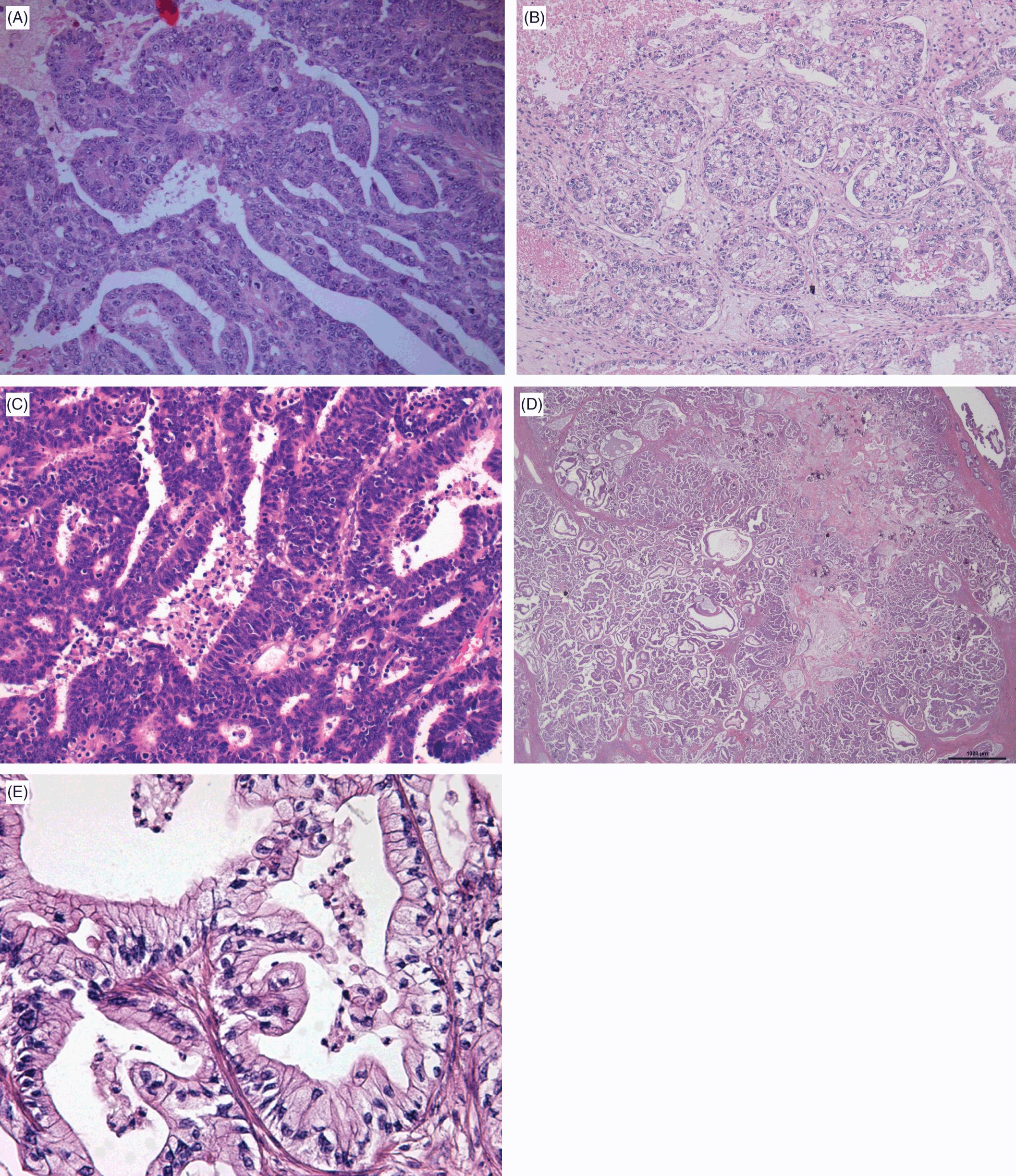 Ovarian Epithelial Stromal Tumors And Similar Lesions In The Testis Chapter 5 Gynecologic And Urologic Pathology