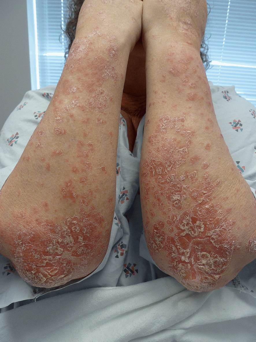 Dermatologic conditions in the elderly (Chapter 35