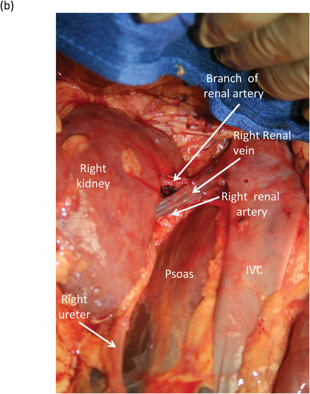 ureteral renal vein