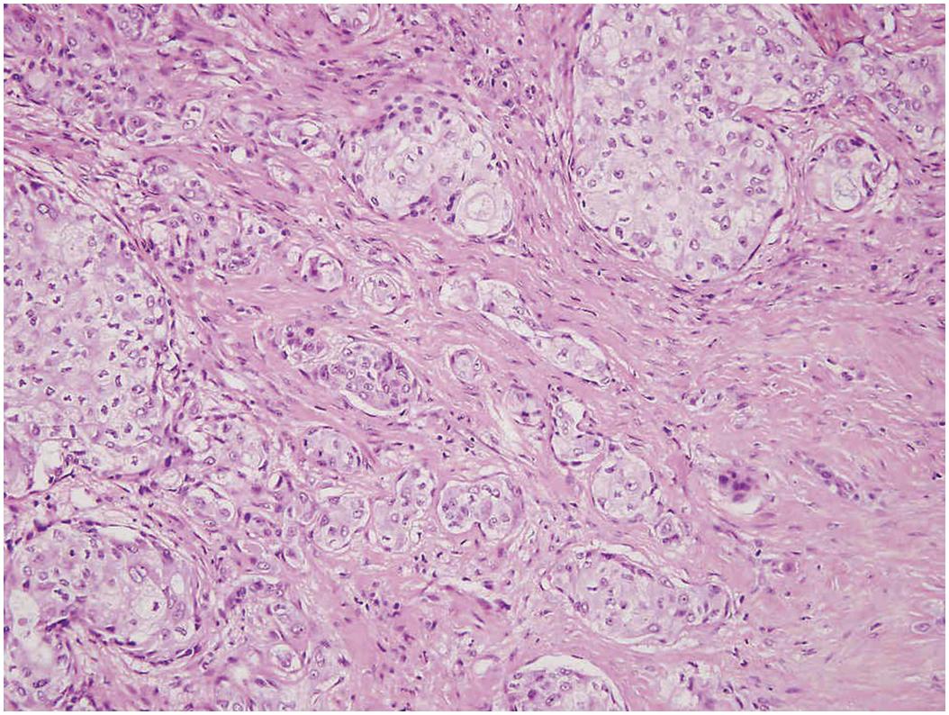 Pleomorf adenoma - Pleomorf adenoma - Melanóma