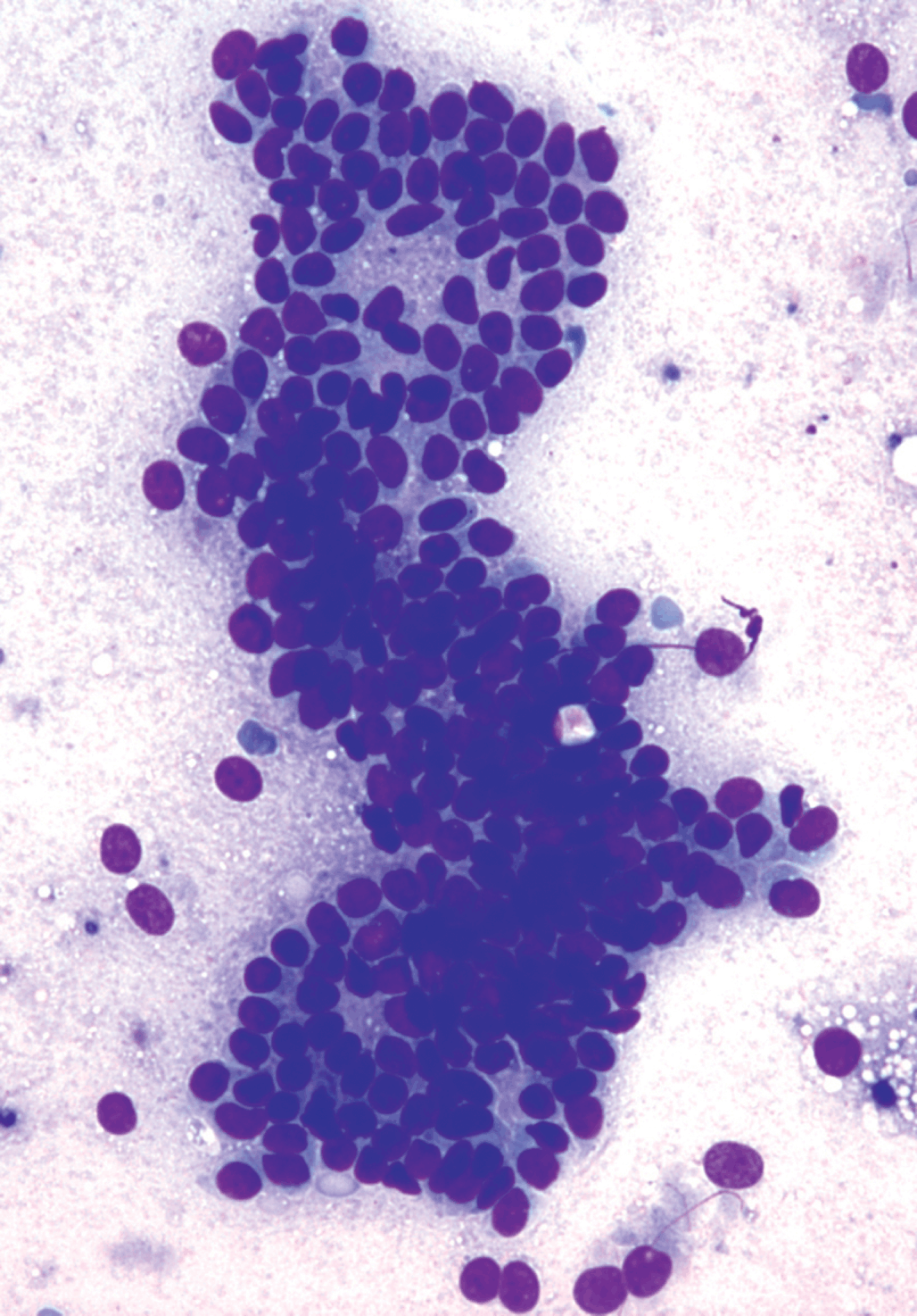 Breastfeeding and ductal papilloma - Duct papilloma cytology